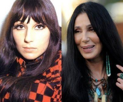 #Cher #CherbeforeandafterPlasticsurgeryctotallyfuzzycom     Cher Before and Afte…