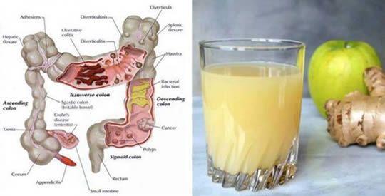 Il succo che svuota l'intestino da tossine e materia fecale: elimina 4 chili in 7 giorni