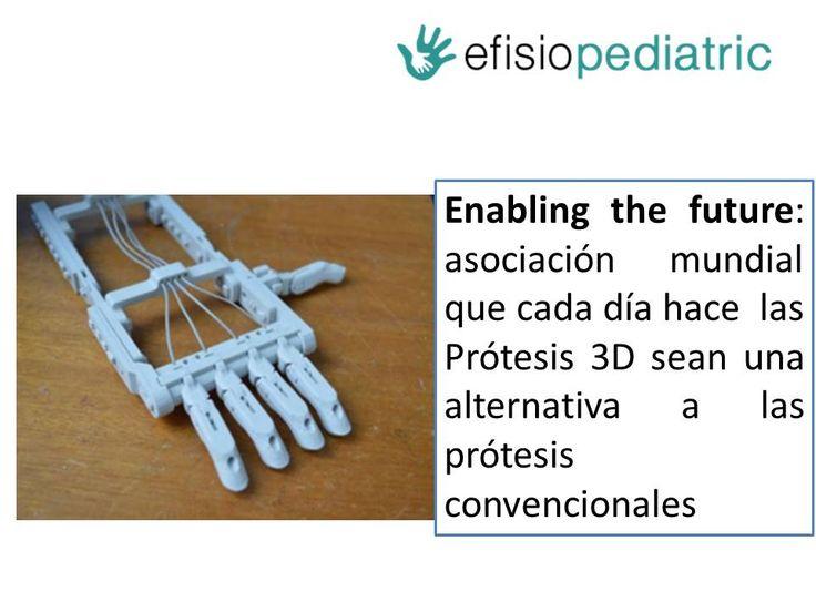 Conociendo Enabling the Future: Asociación mundial dirigida a crear prótesis de mano con impresión 3D