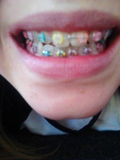 My rainbow braces.