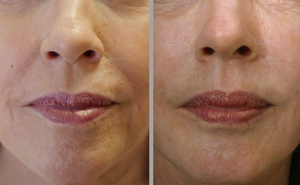 Some incredible before and after photos using Bellafill®, the longest lasting filler on the market. Wether it be subtle, or completely transformational, at Cadella Medical Spa in Chicago, you're always in control! (312) 915-0195