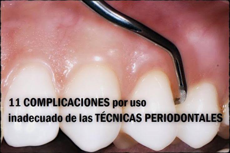11 complicaciones por uso inadecuado de las técnicas periodontales   OVI Dental