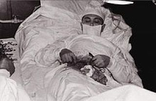 On the 30th of April 1961during the 6th Soviet Antarctic Expedition the stations only Doctor Leonid Rogozov was forced to perform an appendectomy on himself.  He had become ill only the day before but at around 10pm that day he was forced to perform the operation which lasted a total of two hours.  He had a mirror placed so that he could see the surgical feild and was assisted by the Meteorologist and Chief Engineer.  7 days later he took the sutures out without complication.