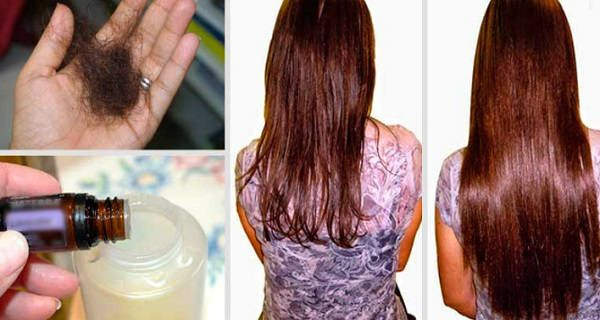Simple homemade shampoo for hair loss! Make it today! Pregnancy, weight loss, stress, menopause and other factors are tightly related to hair loss. But there are also other reasons for hair loss as well. It's normal our body to...find more here: http://worldhealthchoice.com/homemade-shampoo-hair-loss/