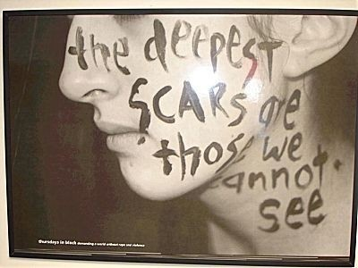 Skin deep topics often changes one's appearance, even if scars aren't physically seen. i.e verbal bullying.: Sayings, Emotional Abuse, Life, Quotes, Truth, So True, Domestic Violence, Deepest Scars