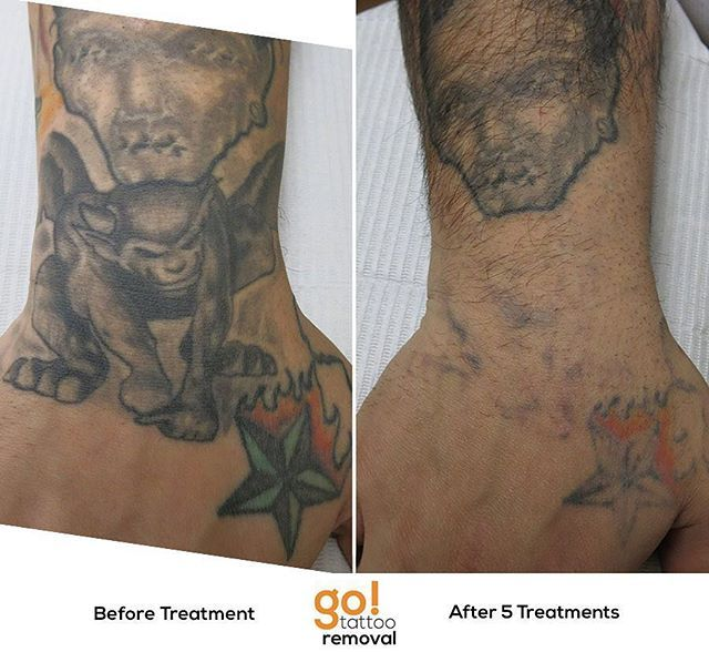 946 best tattoo removal in progress images on pinterest for Tattoo removal nj