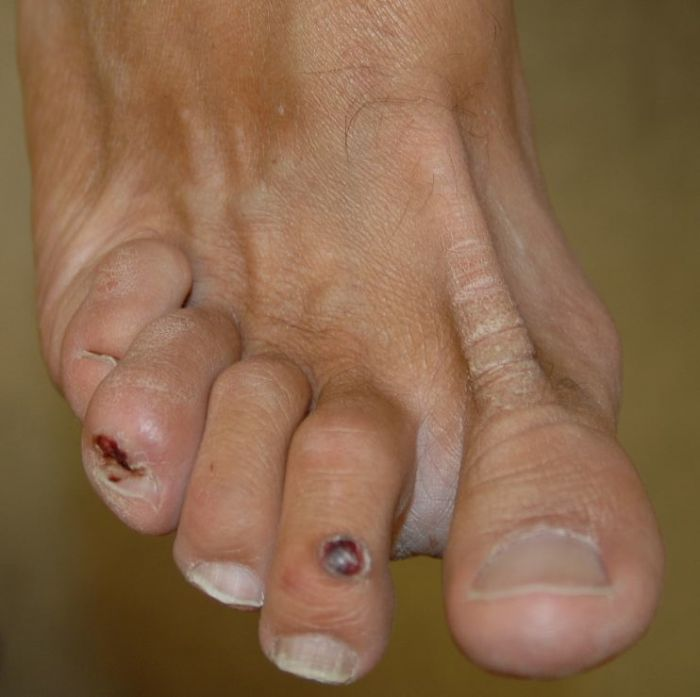 Lump foot base of middle toe on bottom