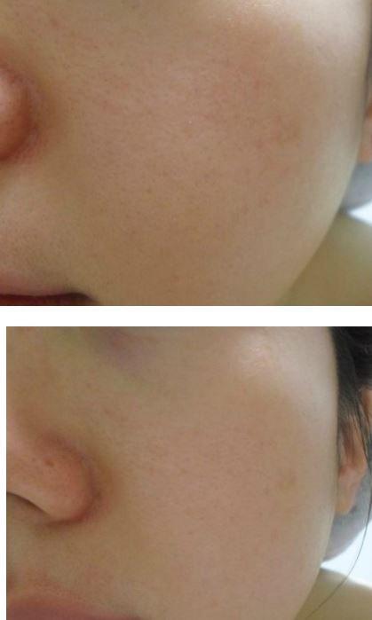 #redergen#brightening #estheticcosmetics #koreabeauty #koreacosmetics #skincare #redness #rosacea #rednessvitamincream