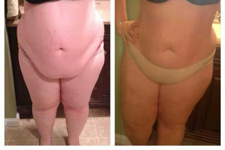 """Results from a happy customer """"These are my results...and I'm floored by them! I did exercise and diet as well, lost a total of 30 pounds so far, but my lower belly skin flap from my c-section is still WAYY tighter than I feel it would have ever been with just my diet. This picture is before any wraps and after 4th wrap.""""Thank you so much for sharing!"""