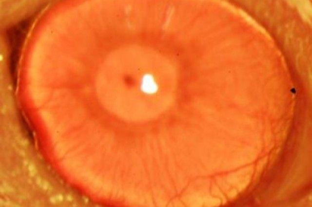 Misterio y Ciencia Hoy: Córneas regeneradas a partir de células madre adul...
