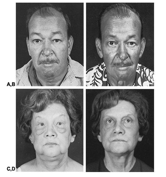 Hyperthyroidism facial hair