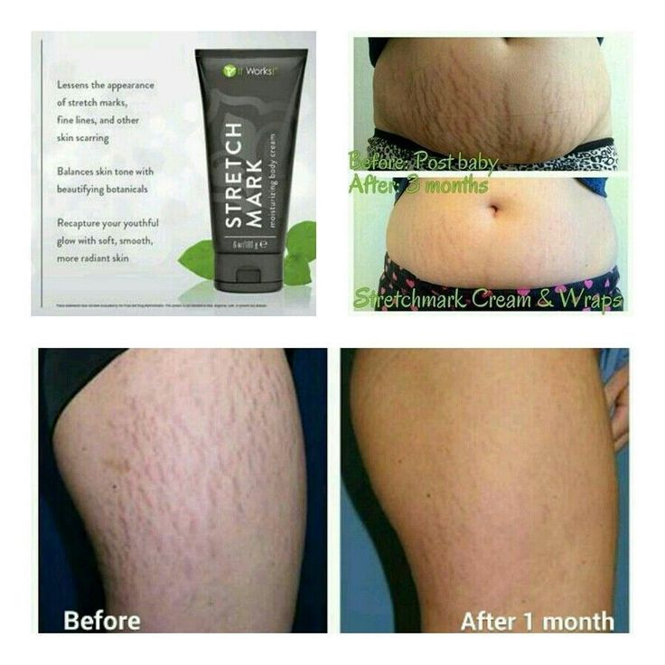 Hows Is This For A Stretch Mark Cream A M A Z I N G Move On