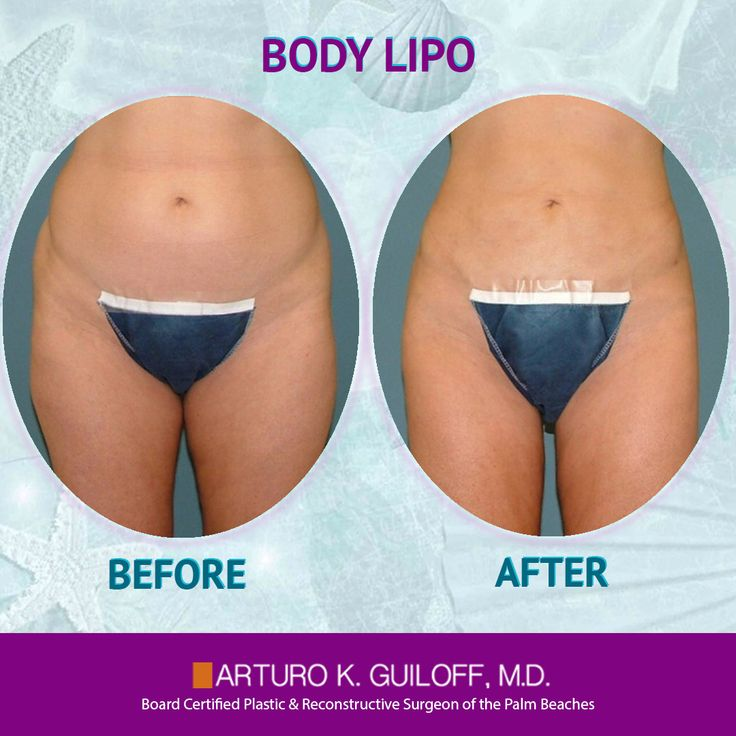 Procedures performed by premiere cosmetic & reconstructive surgeon, Dr. Guiloff