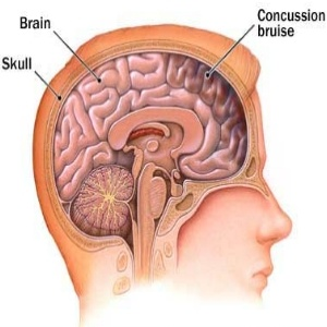 10 Characteristic Symptoms Of A Concussion