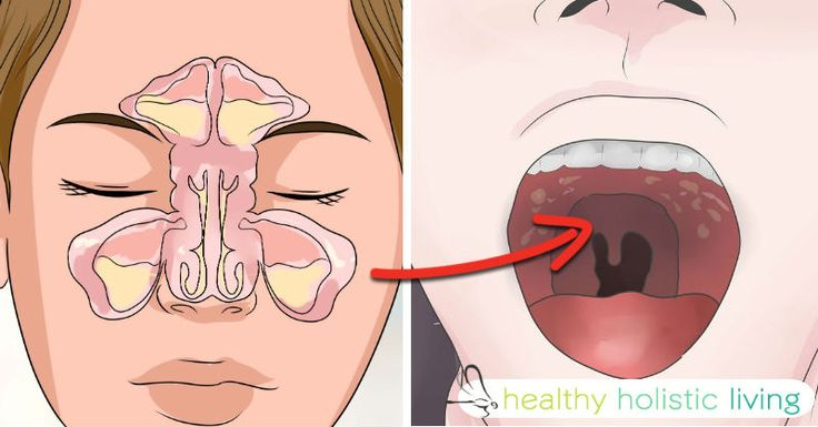 Do you suffer from a constant stuffy nose or a cough that manages to keep you up every night? If this sounds like you, then you may have inflammed sinuses, also known as chronic sinusitis. You're not alone, 32 million people also have suffer from this persistent infection, and like...More