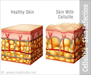 Cellulitis is a bacterial infection of the skin and subcutaneous tissues that affects all age groups. Erysipelas, necrotizing fasciitis, and periorbital cellulitis are the 3 types of cellulitis.