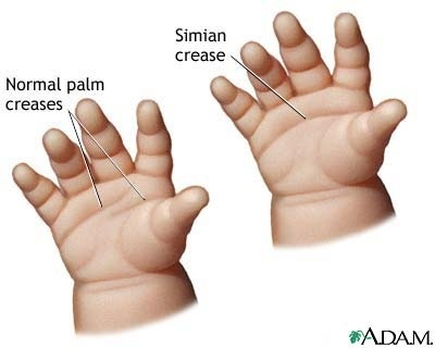 Abnormal Palmar crease in newborn- Please note that we no longer use the term Simian