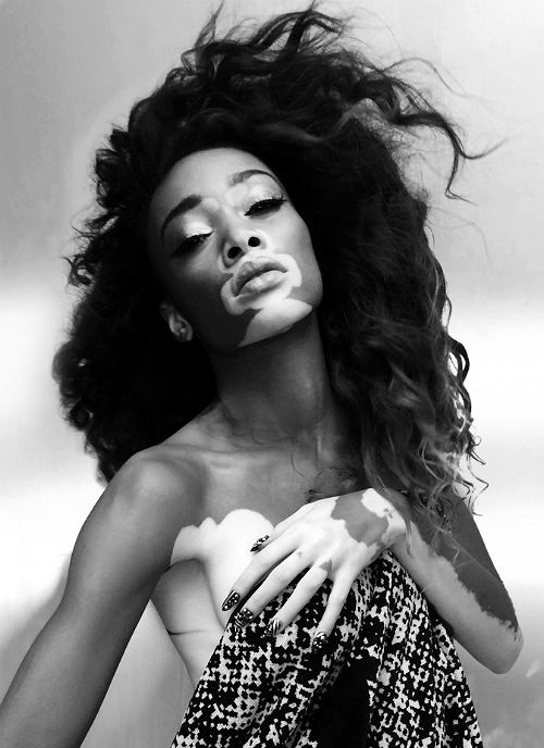 Chantelle Brown-Young / Winnie Harlow | SHOWstudio x Machine-A. ph. by Nick Knight.