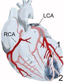 Infarto agudo do miocárdio – Wikipédia, a enciclopédia livre