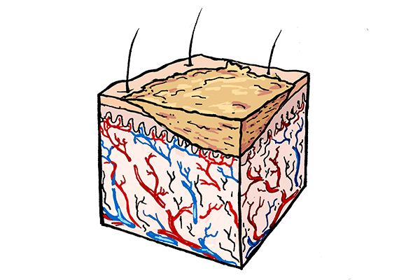 Erfahre mehr über die faszinierenden Vorgänge der Haut, wenn sie sich selber heilt und wieso man Schorf nicht abkratzen sollte.