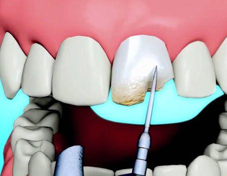 Dental Bonding For Correcting Dental Imperfections