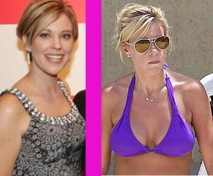 Did Kate Gosselin get a boob job? Before and after plastic surgery photos (breast augmentation)