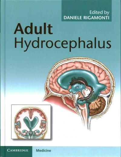 How does adult onset hydrocephalus affect the elderly?