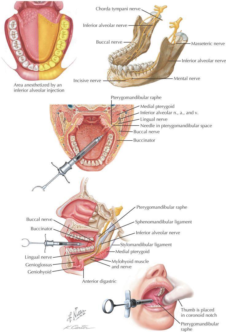 msa dental injection - Google Search…