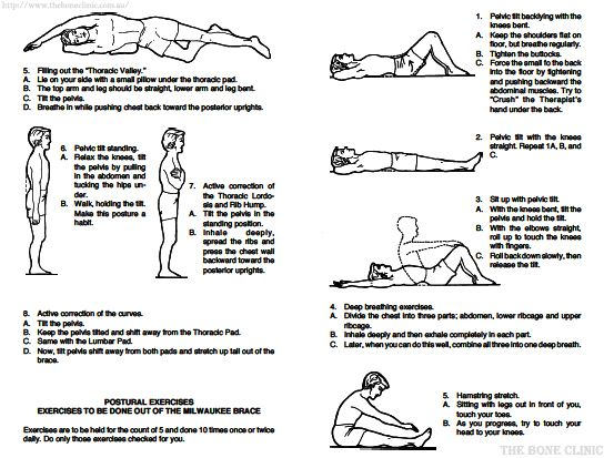 Kyphosis Exercises Kyphosis Exercise – Quotes of the Day