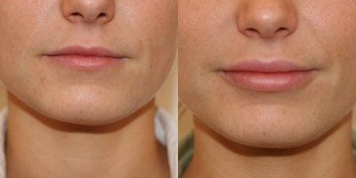 Permalip silicone implants give a natural looking fullness to thin lips.