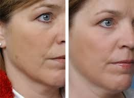 Fractional Laser Treatment Beverly Hills
