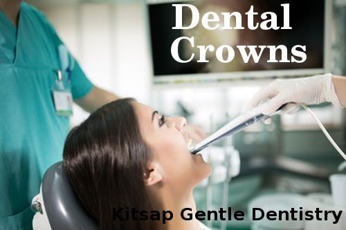Recovering Swallowed Dental Crowns - Crowns are attached to the tooth structure with luting cement. In very rare cases it may happen that the crown is swallowed by the patient.