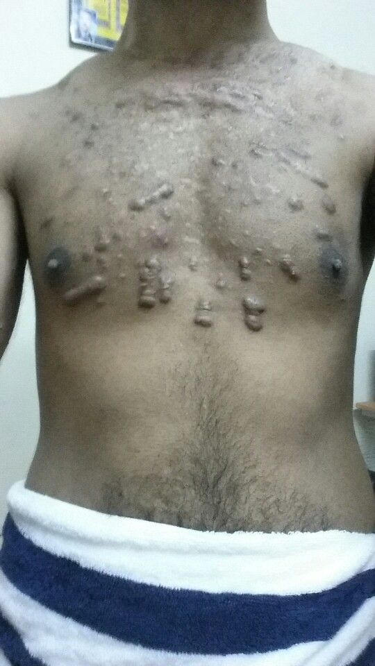 12 best images about keloid on pinterest them for Hydrogen peroxide on tattoo