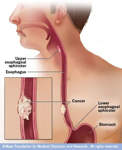 The American Cancer Society estimates that 16,980 people will be diagnosed with esophageal cancer in 2015. Don't be one of them. Learn about the risk factors and take action today!