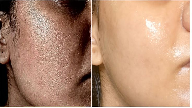 Do this for just 10 minutes a day and all large skin pores will disappear from your face