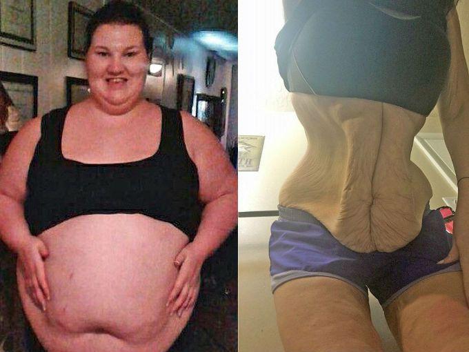 Tiffaney Anderson tiene 26 años, pero a su corta edad ha experimentado grandes desafíos con su peso. Su adicción por la comida chatarra hizo que esta mamá de Utah llegara a pesar 181 kilos.