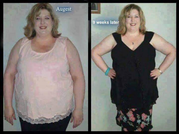 medical weight loss st petersburg fl