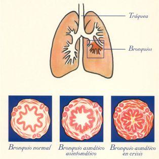 Principal afección del aparato respiratorio: el asma bronquial