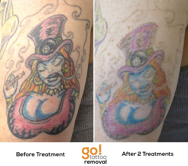Tattoo Removal 2015