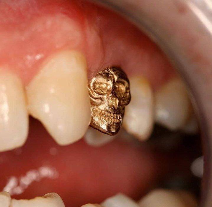 Зубная коронка - череп #стоматология #dentistry