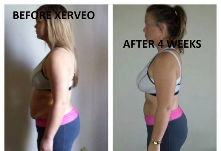 There's a reason Xerveo is doubling the size of the company every month, and this is one! Congrats on this transformation after just 4 weeks! www.xerveo.com/weighlessez