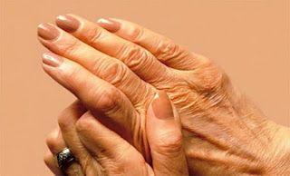 ΚΟΝΤΑ ΣΑΣ: Ρευματοειδής αρθρίτιδα: Τα πέντε προειδοποιητικά σ...