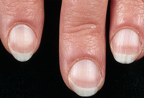 Very pale nails can sometimes be a sign of serious illness, such as: Anemia Congestive heart failure Liver disease Malnutrition