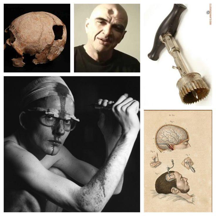 La trapanazione del cranio è un'usanza antica pr curare malattie mentali. Qualcuno si è autotrapanato il cranio negli anni 60 per avere benefici psicologici