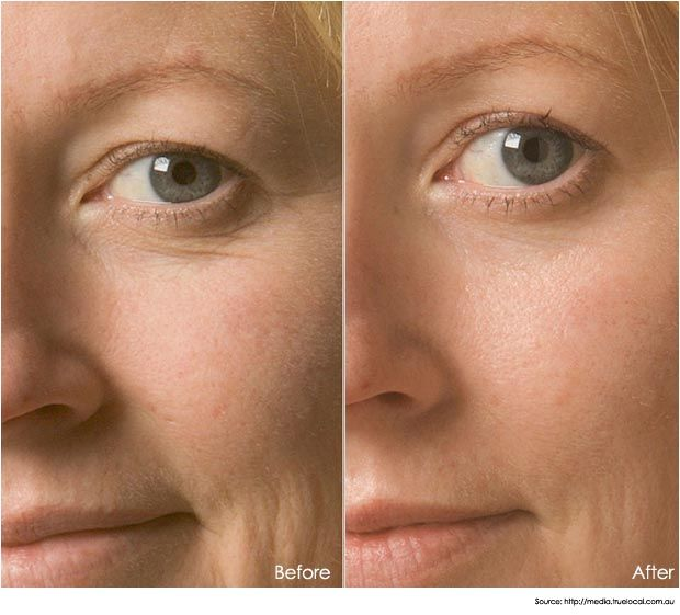 Oxygen Facial for All Skin Types | Oxygen Facial Treatment