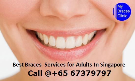 Mybraces Clinic explains invisible cheap braces Singapore, which are insured on the inside areas of teeth and not noticeable when you talk and smile. Book Doctor Online +6567379797