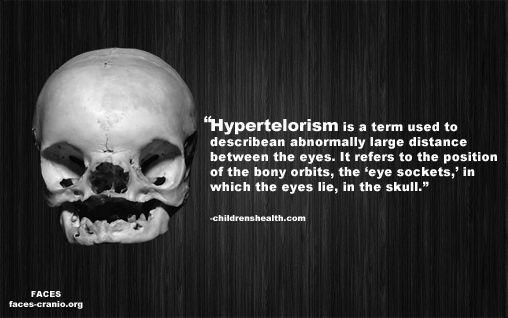 Hypertelorism Craniofacial Anomalies Skull