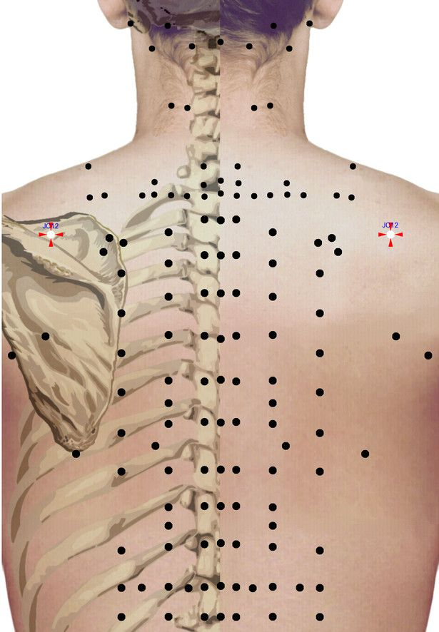 Punkty stymulacji metodą elektropunktury i akupunktury dla schorzenia: Nerwoból…