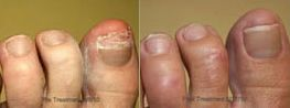 Before/after shot of laser fungal toenail treatment, performed at Connecticut Foot Care Centers.
