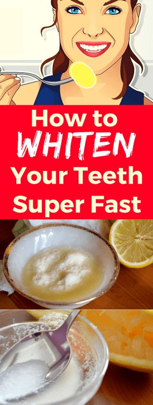 How to whiten your teeth super fast - #womensworkout #workout #femalefitness -